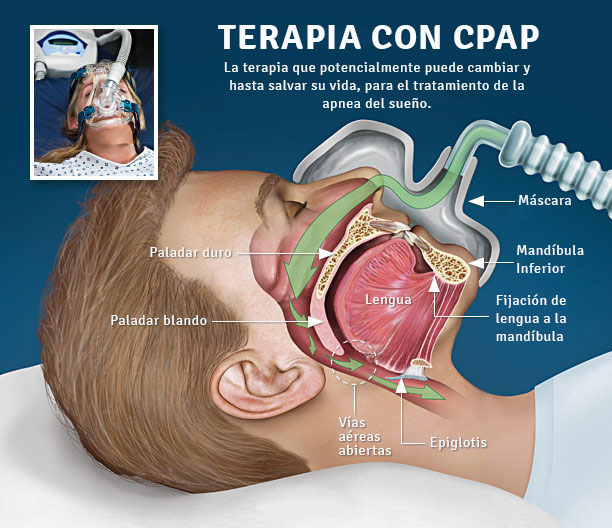Respired | Terapia Respiratoria a Domicilio